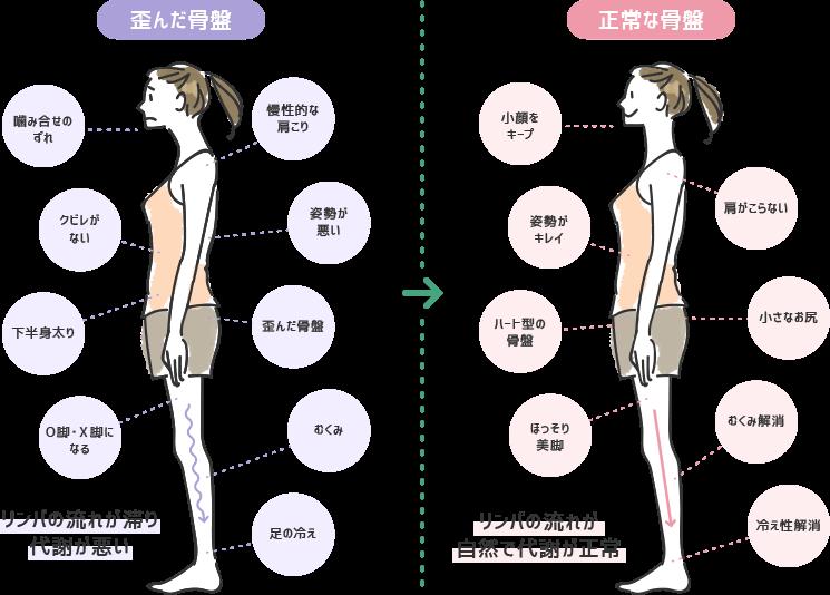 体調不良や肥満は、骨盤の歪みによる代謝不全や身体のねじれが原因です。